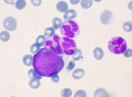 Immature cells in myeloid serie myelocyte metamyelocyte. Stock Photo