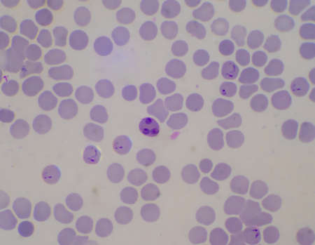 Blood parasite infected red blood cells Ring form Malaria.
