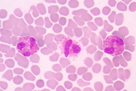 Orange granule Eosinophil white blood cells on red blod cell background.