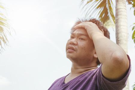 dehydration: A man are heat stroke on the sun Stock Photo
