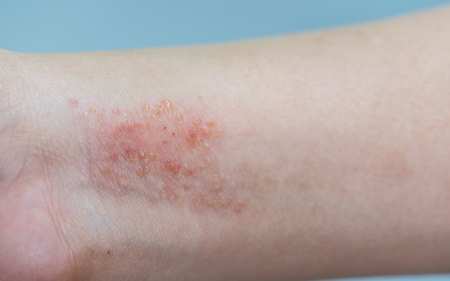 atopic dermatitis symptom skin on hand