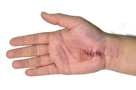 carpal tunnel: Minor surgery Carpal  Tunnel  Syndrome on hand