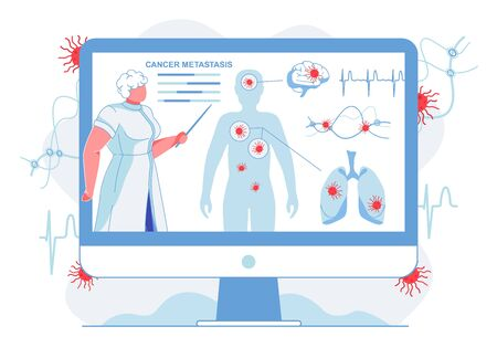 Doctor Showing Cancer Metastasis Flat Illustration