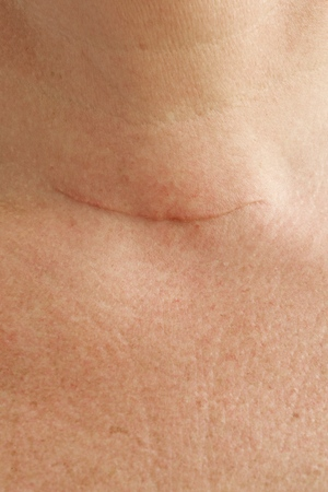 50 to 60 years: Neck scar after thyroid glands removal surgery by a woman between 50 and 60 years old. Closeup