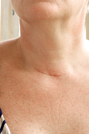 glands: Neck scar after thyroid glands removal surgery by a woman between 50 and 60 years old. Closeup