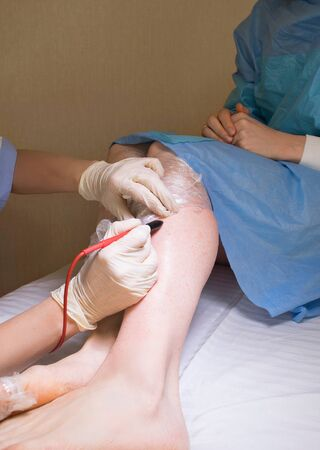 Cosmetologist does needle epilation to her patient. Closeup