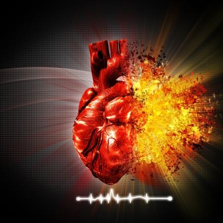 heart disease: ataque cardíaco. abstracta antecedentes médicos y de atención de salud