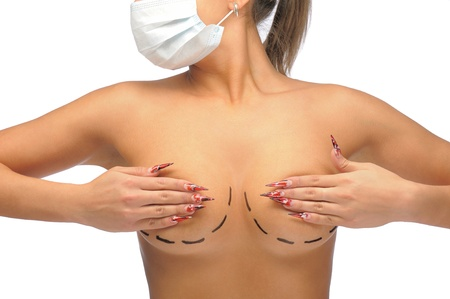Closeup photo of a Caucasian womans breasts marked with lines for breast modification in medical mask isolated on white Stock Photo
