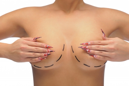 Closeup photo of a Caucasian woman's breasts marked with lines for breast modification isolated on white Stock Photo - 14446827