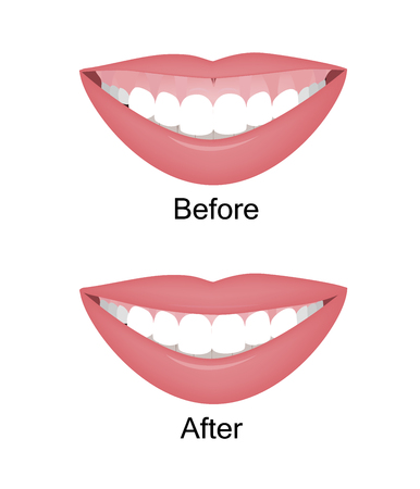 Mouth with a high smile line or gummy smile before and after the orthotropics, orthotropics or botox injections correction. Vector illustration