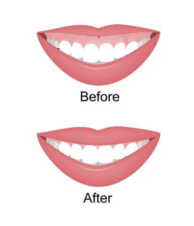 Mund mit einer hohen Lachlinie oder einem gummiartigen Lächeln vor und nach der Korrektur der Orthotropika, Orthotropika oder Botox-Injektionen. Vektor-Illustration