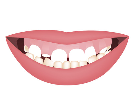 Underbite dental occlusion, vertical face growth. Kids mouth with a too big mandible and high smile line or gummy smile before the orthotropics or orthotropics treatment. Vector illustration Standard-Bild - 122422324