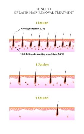 Vector illustarion that shows why it is impossible to remove all unwanted hair in one laser treatment session. Growing and resting hair follicles before the first, third, and seven session. Illustration