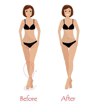 Woman epilation concept - before and after unwanted hair removing. Happy girl after armpit, bikini, and legs epilation. Vector illustration Illustration