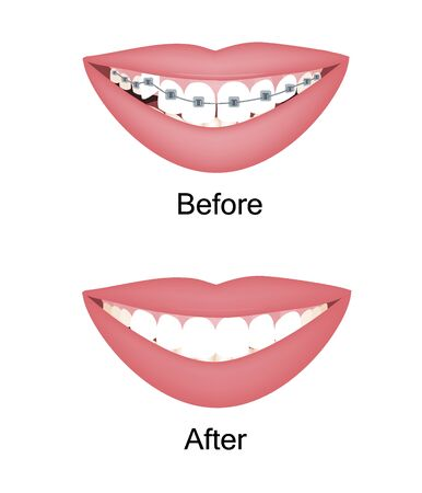 Crooked woman teeth before and after the orthodontic treatment with braces. Vector illustration isolated set