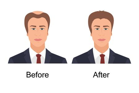 Man with alopecia before and after hair treatment and transplantation. Male baldness problem solution. Health and beauty concept for diagnostic centers and clinics. Vector illustration. Illusztráció