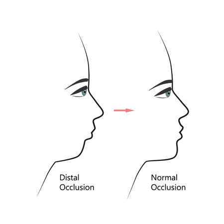 Distal bite profile before and after orthodontic treatment. Human with malocclusion, lower jaw pushing back, bite correction by braces. Vector illustration