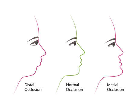 distal, Normal, and Mesial bite profile, vector illustration. Overbite or underbite before and after orthodontic treatment. Human with malocclusion, bite correction by braces concept 向量圖像