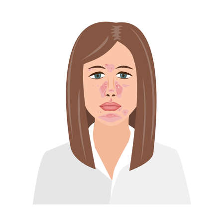 Unhappy Woman Suffering from Seborrheic Dermatitis. Vector illustration. Adult or teenager face with skin problems isolated white background Иллюстрация