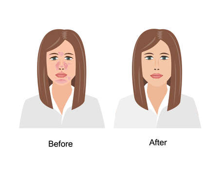 Woman Suffering from Seborrheic Dermatitis before and after medical treatment. Vector illustration. Adult or teenager face with skin problems isolated white background Иллюстрация