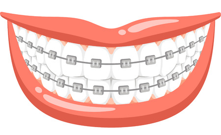dental braces cartoon illustration