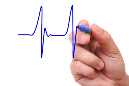 Hand drawing ecg graph isolated on white background Stock Photo