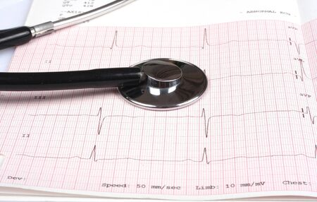 detail of stethoscope on ecg graph close up photo