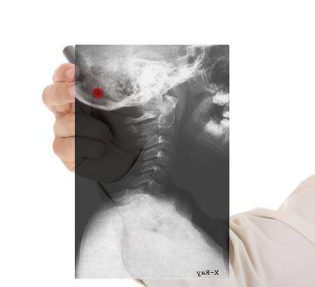 luxacion: Mano del m�dico con la imagen de rayos x de scull