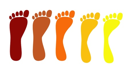 foot print: flat feet, various stages of the disease
