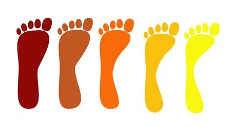 foot print: pieds plats, diff�rents stades de la maladie