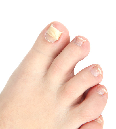 reconstruction of woman toe nail Archivio Fotografico