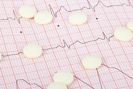 EKG mit Medikamenten Standard-Bild - 26549642