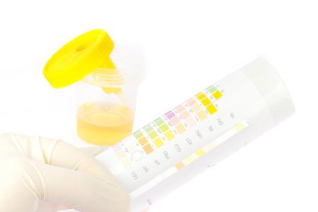 Urinprobe mit Teststreifen Standard-Bild - 26986113