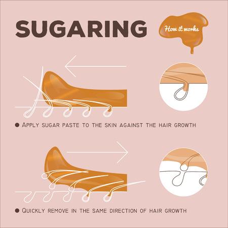 la instrucción de la depilación adición de sacarosa. cómo funciona. pasta de azúcar Ilustración de vector