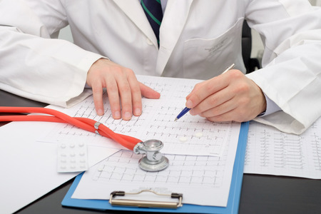 Doctor checking an Ecg paper