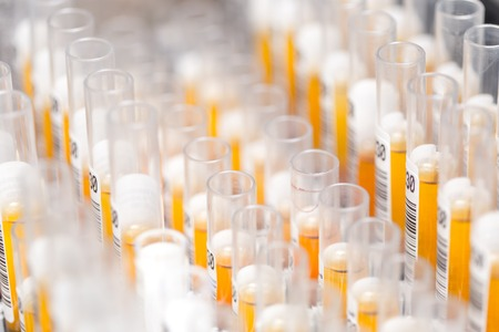 Laboratory glass test tubes filled with orange liquid for an experiment in a science research lab. Analyzes Stok Fotoğraf