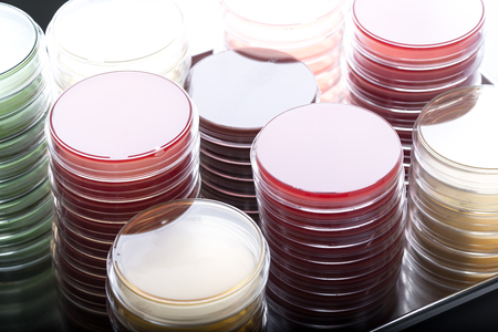 Red and yellow petri dishes stacks in microbiology lab on the bacteriology laboratory background. Focus on stacks.