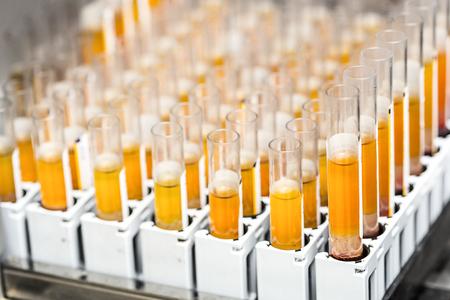 examenes de laboratorio: Tubos de ensayo con líquido amarillo en el laboratorio Foto de archivo