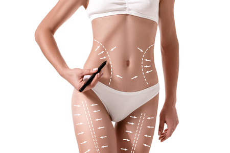Female body with the drawing arrows on it isolated on white. Fat lose, liposuction and cellulite removal concept. Stock Photo
