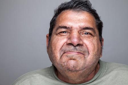 discapacidad: Portriat Primer plano de un hombre mayor