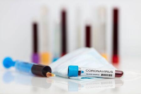 Testing the laboratory sample of the novel Coronavirus Stock Photo