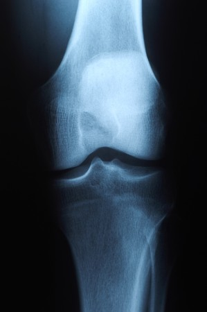X ray photo of human knee