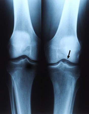 X ray photo of human knee Stock Photo - 3962027