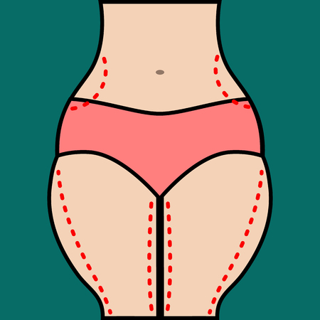 excess: Liposuction of hips and thighs. Close vector illustration of body contour with dotted line. Plastic surgery. Getting rid of excess fat.