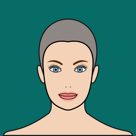plump lips: Lip augmentation with injection of hyaluronic acid, filler. Cheiloplasty plastic operation. Vector illustration