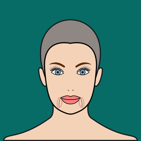 augmentation: Marionette folds. Plastic surgery. Cosmetic injection. Vector illustration.