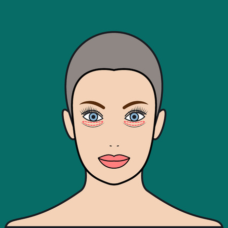 Plastic surgery of eyelids, operation removal of bags under eyes. Blepharoplasty. Beautiful female face with marks. Vector illustration. Illustration