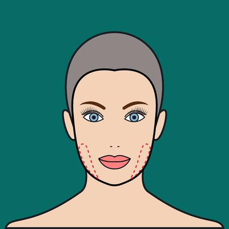 alteration: Plastic surgery buccal fat removal. Cosmetic surgery. Vector illustration.