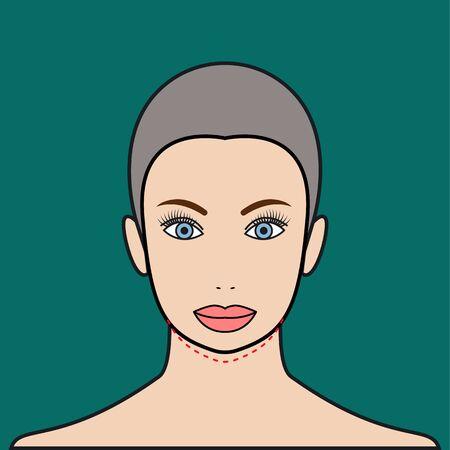 augmentation: Plastic surgery chin augmentation. Aesthetic surgery. Vector illustration.
