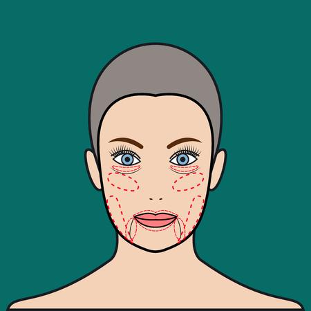 Face rejuvenation. Plastic surgery, beauty. Vector illustration.